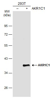 Non-transfected (–) and transfected (+) 293T whole cell extracts (30 μg) were separated by 10% SDS-PAGE, and the membrane was blotted with AKR1C1 antibody (GRP491) diluted at 1:1000. The HRP-conjugated anti-rabbit IgG antibody  was used to detect the