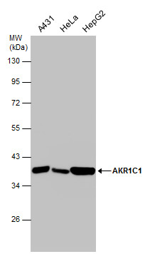 Various whole cell extracts (30 ?g) were separated by 10% SDS-PAGE, and the membrane was blotted with AKR1C1 antibody (GRP491) diluted at 1:1000.