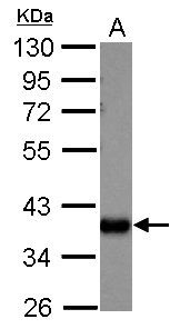 Sample (30 ug of whole cell lysate)  A: A549  10% SDS PAGE  GRP491 diluted at 1:1000