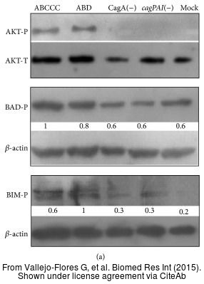 The WB analysis of AKT antibody [N3C2], Internal was published by Vallejo-Flores G and colleagues in the journal Biomed Res Int in 2015.PMID: 26557697