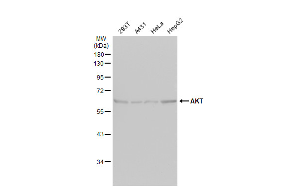 Various whole cell extracts (30 μg) were separated by 10% SDS-PAGE, and the membrane was blotted with AKT antibody [N3C2], Internal (GRP513) diluted at 1:1000. The HRP-conjugated anti-rabbit IgG antibody  was used to detect the primary antibody.