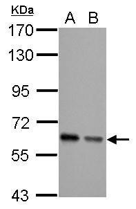 Sample (30 μg of whole cell lysate)  A: JC  B: BCL-1  7.5% SDS PAGE  GRP513 diluted at 1:5000 The HRP-conjugated anti-rabbit IgG antibody  was used to detect the primary antibody.