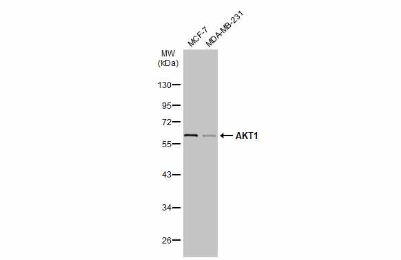 Various whole cell extracts (30 μg) were separated by 10% SDS-PAGE, and the membrane was blotted with AKT1 antibody (GRP499) diluted at 1:1000. The HRP-conjugated anti-rabbit IgG antibody  was used to detect the primary antibody.
