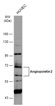 Whole cell extract (30 μg) was separated by 7.5% SDS-PAGE, and the membrane was blotted with Angiopoietin 2 antibody (GRP469) diluted at 1:3000. The HRP-conjugated anti-rabbit IgG antibody  was used to detect the primary antibody.