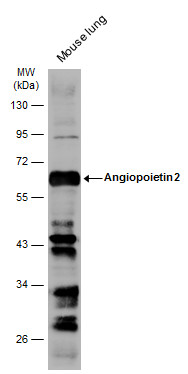 Mouse tissue extract (50 μg) was separated by 10% SDS-PAGE, and the membrane was blotted with Angiopoietin 2 antibody (GRP469) diluted at 1:1000. The HRP-conjugated anti-rabbit IgG antibody  was used to detect the primary antibody.