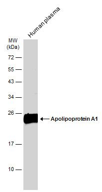 Human plasma (30 μg) was separated by 12% SDS-PAGE, and the membrane was blotted with Apolipoprotein A1 antibody (GRP503) diluted at 1:10000. The HRP-conjugated anti-rabbit IgG antibody  was used to detect the primary antibody.