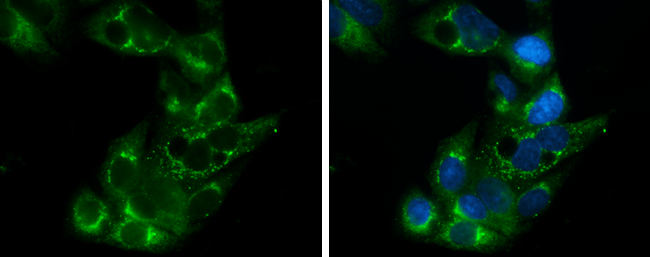 Apolipoprotein E antibody [C2C3], C-term detects Apolipoprotein E protein at cytoplasm by immunofluorescent analysis.Sample: HepG2 cells were fixed in 4% paraformaldehyde at RT for 15 min.Green: Apolipoprotein E stained by Apolipoprotein E antibody [C2C3]