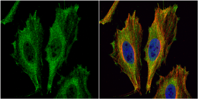 Aspartoacylase antibody [N1C3-2] detects Aspartoacylase protein at cytoplasm by immunofluorescent analysis.Sample: HeLa cells were fixed in 4% paraformaldehyde at RT for 15 min.Green: Aspartoacylase protein stained by Aspartoacylase antibody [N1C3-2] (GRP