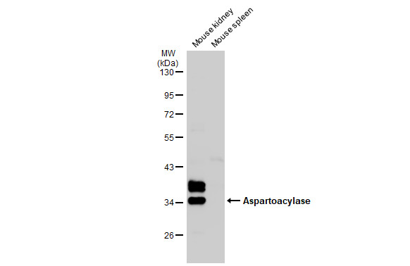 Various tissue extracts (50 μg) were separated by 10% SDS-PAGE, and the membrane was blotted with Aspartoacylase antibody [N1C3-2] (GRP590) diluted at 1:1000. The HRP-conjugated anti-rabbit IgG antibody  was used to detect the primary antibody.