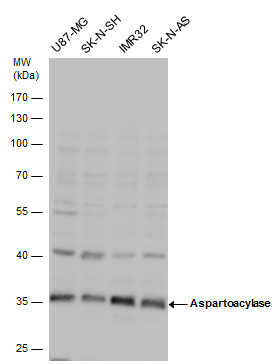 Aspartoacylase antibody detects Aspartoacylase  protein by Western blot analysis. Various whole cell extracts (30 ?g) were separated by 10% SDS-PAGE, and the membrane was blotted with Aspartoacylase antibody (GRP590) diluted by 1:1000.
