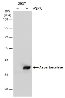 Non-transfected (–) and transfected (+) 293T whole cell extracts (30 μg) were separated by 10% SDS-PAGE, and the membrane was blotted with Aspartoacylase antibody [N1C3-2] (GRP590) diluted at 1:10000. The HRP-conjugated anti-rabbit IgG antibody  was