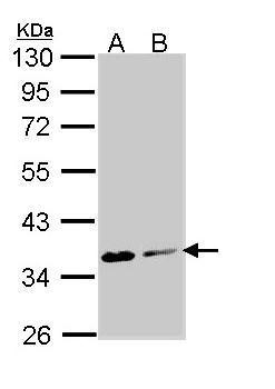 Sample (30 μg of whole cell lysate)  A: Molt-4 (GRP590)  B: Raji  10% SDS PAGE  diluted at 1:1000 The HRP-conjugated anti-rabbit IgG antibody  was used to detect the primary antibody.
