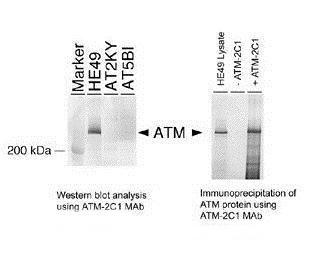 Detection of human ATM protein using anti-ATM 2C1 monoclonal antibody (GRP535) by western blot or immunoprecipitation.