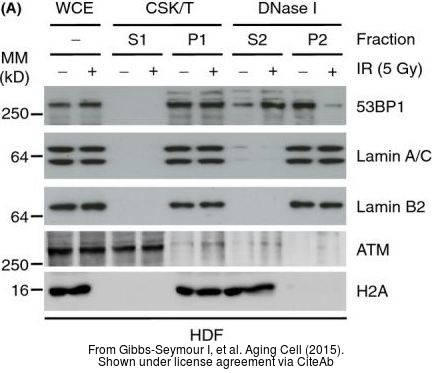 The WB analysis of ATM antibody [2C1] was published by Gibbs-Seymour I and colleagues in the journal Aging Cell in 2015.PMID: 25645366