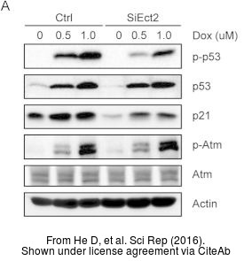 The WB analysis of ATM antibody [2C1] was published by He D and colleagues in the journal Sci Rep in 2016.PMID: 27074761