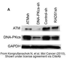 The WB analysis of ATM antibody [2C1] was published by Kongruttanachok N and colleagues in the journal Mol Cancer in 2010.PMID: 20356374