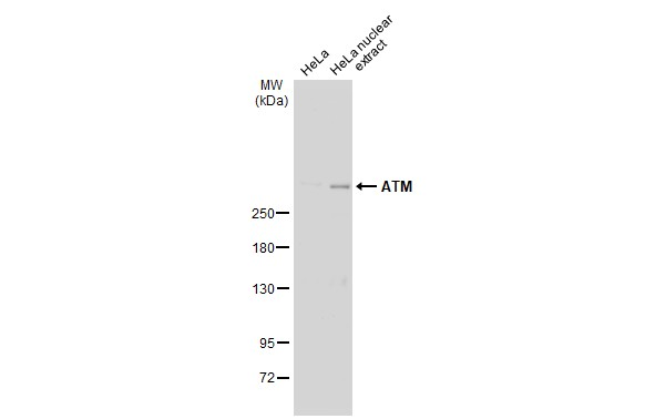 HeLa whole cell extract and nuclear extracts (30 μg) were separated by 5% SDS-PAGE, and the membrane was blotted with ATM antibody [2C1] (GRP535) diluted at 1:500. The HRP-conjugated anti-mouse IgG antibody  was used to detect the primary antibody.