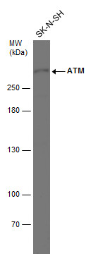 Whole cell extract (30 μg) was separated by 5% SDS-PAGE, and the membrane was blotted with ATM antibody [2C1] (GRP535) diluted at 1:1000.
