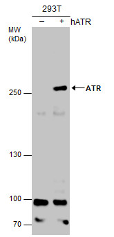 Non-transfected (–) and transfected (+) 293T whole cell extracts (30 μg) were separated by 5% SDS-PAGE, and the membrane was blotted with ATR antibody [2B5] (GRP536) diluted at 1:500. The HRP-conjugated anti-mouse IgG antibody  was used to detect the