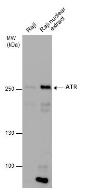 Raji whole cell and nuclear extracts (30 μg) were separated by 5% SDS-PAGE, and the membrane was blotted with ATR antibody (GRP536) diluted at 1:500. The HRP-conjugated anti-mouse IgG antibody  was used to detect the primary antibody.