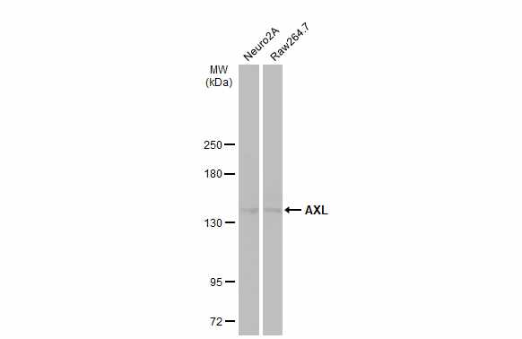 Various whole cell extracts (30 μg) were separated by 5% SDS-PAGE, and the membrane was blotted with AXL antibody (GRP526) diluted at 1:1000. The HRP-conjugated anti-rabbit IgG antibody  was used to detect the primary antibody.