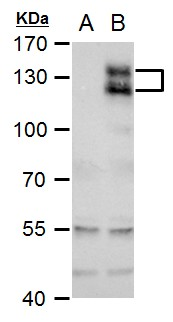 AXL antibody detects AXL protein by western blot analysis.A. 30 ?g 293T whole cell extractB. 30 ?g whole cell extract of human AXL-transfected 293T cells7.5 % SDS-PAGEAXL antibody (GRP526) dilution: 1:5000