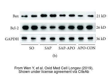 The WB analysis of Bcl-2 antibody [N1N2] was published by Wen Y and colleagues in the journal Oxid Med Cell Longev in 2019.PMID: 31210840