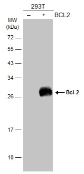 Non-transfected (–) and transfected (+) 293T whole cell extracts (30 μg) were separated by 12% SDS-PAGE, and the membrane was blotted with Bcl-2 antibody [N1N2], N-term (GRP455) diluted at 1:500. The HRP-conjugated anti-rabbit IgG antibody  was used