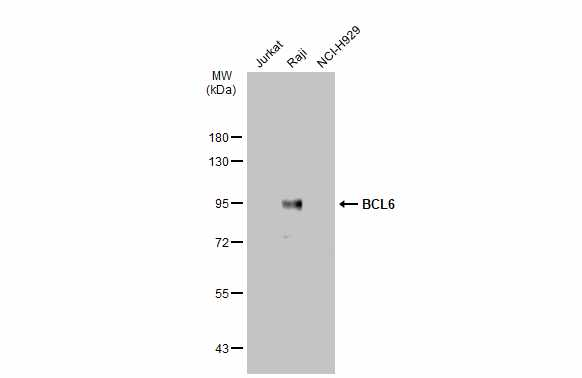 Various whole cell extracts (30 μg) were separated by 7.5% SDS-PAGE, and the membrane was blotted with BCL6 antibody [N2C1], Internal (GRP472) diluted at 1:1000. The HRP-conjugated anti-rabbit IgG antibody  was used to detect the primary antibody.