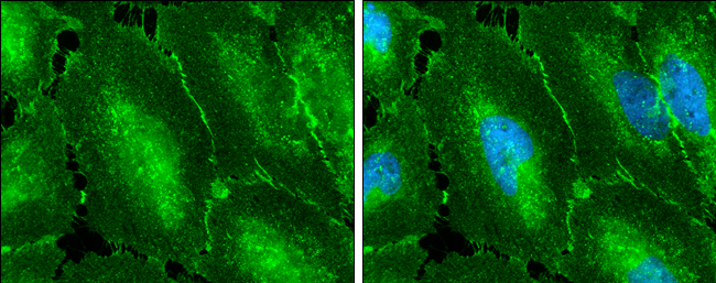 beta Catenin antibody [N1N2-2], N-term detects beta Catenin protein at membrane on mouse urinary bladder by immunohistochemical analysis. Sample: Paraffin-embedded mouse urinary bladder. beta Catenin antibody [N1N2-2], N-term (GRP474) diluted at 1:500.