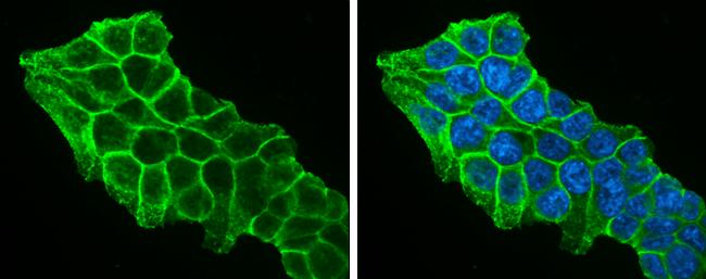 7.5% SDS-PAGEbeta Catenin antibody [N1N2-2], N-term (GRP474) dilution: 1:1000 The HRP-conjugated anti-rabbit IgG antibody  was used to detect the primary antibody.