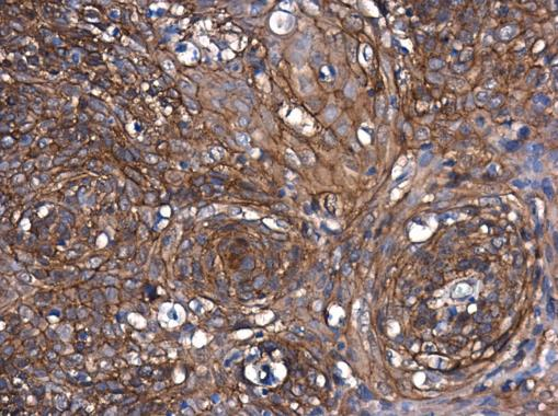 beta Catenin antibody [N1N2-2], N-term detects beta Catenin protein at cell membrane and cytoplasm in mouse duodenum by immunohistochemical analysis. Sample: Paraffin-embedded mouse duodenum. beta Catenin antibody [N1N2-2], N-term (GRP474) diluted at 1:50
