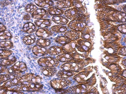beta Catenin antibody [N1N2-2], N-term detects beta Catenin protein at cell membrane and cytoplasm in human cervix by immunohistochemical analysis. Sample: Paraffin-embedded human cervix. beta Catenin antibody [N1N2-2], N-term (GRP474) diluted at 1:500.