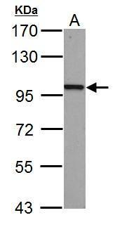 beta Catenin antibody [N1N2-2], N-term detects CTNNB1 protein by western blot analysis.A. 30 μg PC-12 whole cell lysate/extract