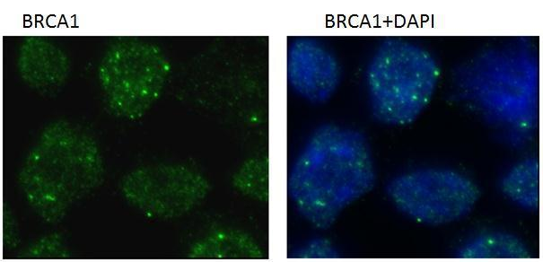 BRCA1 antibody 6B4 (GRP538)  was used for immunofluorescent staining of BRCA1 nuclear foci induced by ionizing radiation. IR-treated (2 hr /4 gray IR) U2OS cells were pre-extracted with CSK buffer on ice for 4 min before fixation with 4% PFA in room tempe