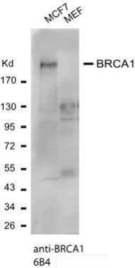 BRCA1 antibody 6B4 (GRP538) was used for western blot assay at 1:1000 antibody dilution. western blot assay was performed using MCF7 (human) and MEF(mouse embryonic fibroblast) cell lysate separated in a 5-15% gradient gel.Observed molecular weight of BRC