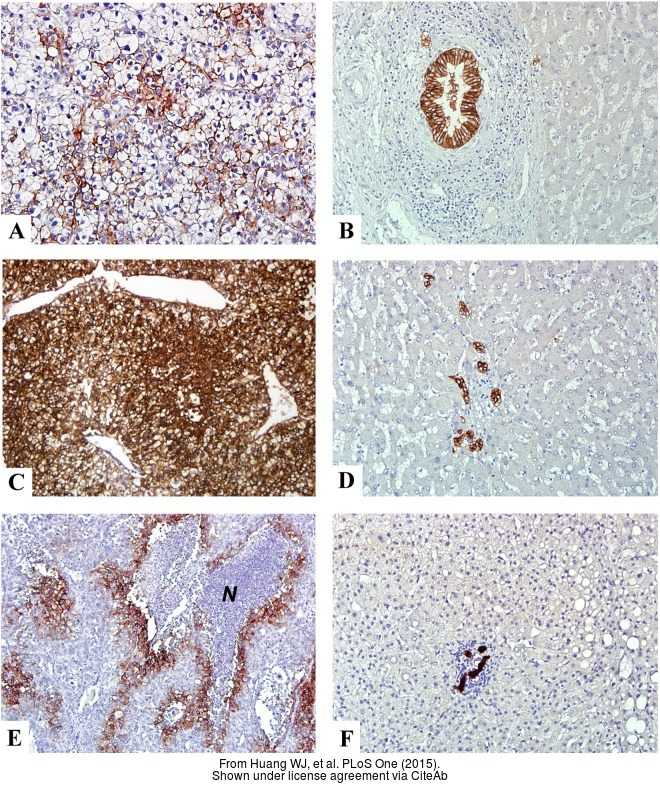 The IHC-P analysis of Carbonic Anhydrase IX antibody [GT12] was published by Huang WJ and colleagues in the journal PLoS One in 2015.PMID: 25738958