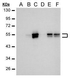 Sample (30 μg HeLa whole cell lysate)A: 24 hr UntreatedB: 24 hr treatment with 100μM CoCl2C: 24 hr treatment with 200μM CoCl2D: 48 hr UntreatedE: 48 hr treatment with 100μM CoCl2F: 48 hr treatment with 200μM CoCl2Anti-CAIX antibody [GT12] (