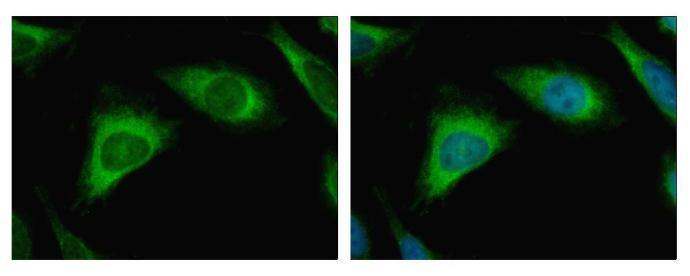 Caspase 3 antibody detects CASP3 protein at Cytoplasm by immunofluorescent analysis. Sample: HeLa cells were fixed in 4% paraformaldehyde at RT for 15 min.Green: CASP3 protein stained by Caspase 3 antibody (GRP498) diluted at 1:500.Blue: Hoechst 33343 sta