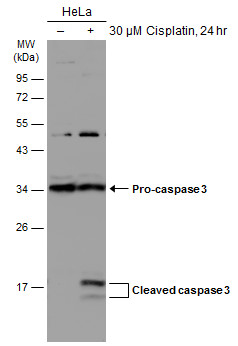 Untreated (–) and treated (+) HeLa whole cell extracts (30 μg) were separated by 12% SDS-PAGE, and the membrane was blotted with Caspase 3 antibody (GRP498) diluted at 1:1000. The HRP-conjugated anti-rabbit IgG antibody  was used to detect the primar