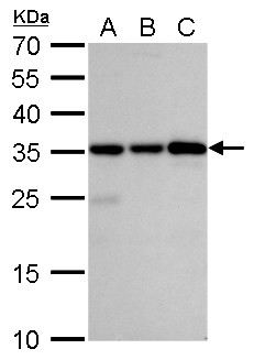 Caspase 3 antibody detects Caspase 3 protein by western blot analysis.A. 30 μg Jurkat whole cell lysate/extractB. 30 μg Raji whole cell lysate/extractC. 30 μg NCI-H929 whole cell lysate/extract 12% SDS-PAGECaspase 3 antibody (GRP498) dilution: 1: