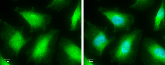 Caspase 8 antibody detects Caspase 8 protein at cytoplasm by immunofluorescent analysis.Sample: HeLa cells were fixed in 4% paraformaldehyde for 10 min.Green: Caspase 8 protein stained by Caspase 8 antibody (GRP500) diluted at 1:100.Blue: Hoechst 33342 st