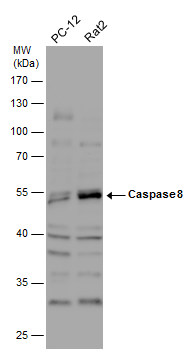 Various whole cell extracts (30 μg) were separated by 10% SDS-PAGE, and the membrane was blotted with Caspase 8 antibody (GRP500) diluted at 1:1000. The HRP-conjugated anti-rabbit IgG antibody  was used to detect the primary antibody.