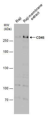 Raji whole cell and membrane extracts (30 μg) were separated by 5% SDS-PAGE, and the membrane was blotted with CD45 antibody (GRP601) diluted at 1:1000.