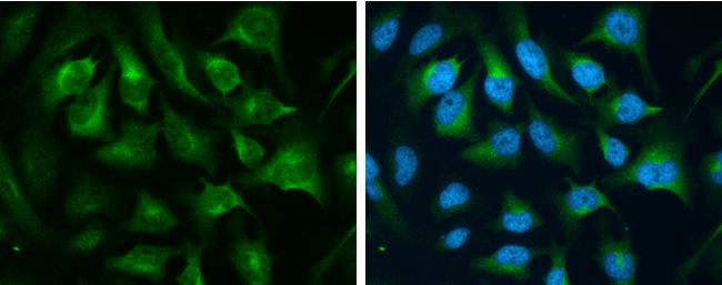 CD71 antibody [N2C1], Internal detects CD71 protein at cytoplasm by immunofluorescent analysis.Sample: HeLa cells were fixed in 4% paraformaldehyde at RT for 15 min.Green: CD71 protein stained by CD71 antibody [N2C1], Internal (GRP479) diluted at 1:500.Bl