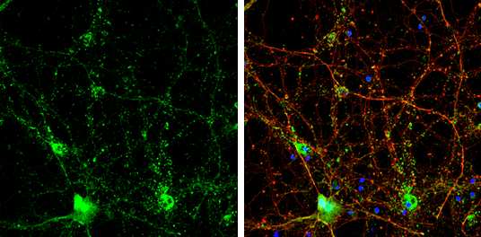 Choline Acetyltransferase antibody [N1N3] detects Choline Acetyltransferase protein by immunofluorescent analysis.Sample: DIV14 rat E18 primary cortical neurons were fixed in 4% paraformaldehyde at RT for 15 min.Green: Choline Acetyltransferase protein st