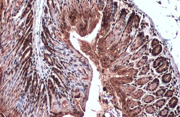 Choline Acetyltransferase antibody [N1N3] detects Choline Acetyltransferase protein at nucleus by immunohistochemical analysis.Sample: Paraffin-embedded mouse colon.Choline Acetyltransferase stained by Choline Acetyltransferase antibody [N1N3] (GRP586) di