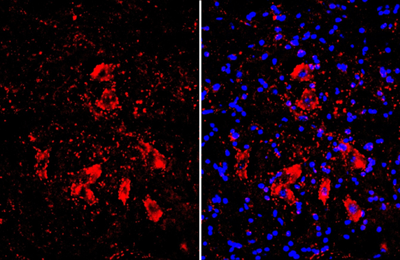 Choline Acetyltransferase antibody [N1N3] detects Choline Acetyltransferase protein by immunohistochemical analysis.Sample: Frozen-sectioned mouse spinal cord.Red: Choline Acetyltransferase stained by Choline Acetyltransferase antibody [N1N3] (GRP586) dil