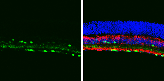 Choline Acetyltransferase antibody [N1N3] detects Choline Acetyltransferase protein in the amacrine cells by immunohistochemical analysis.Sample: Frozen sectioned adult mouse retina. Green: Choline Acetyltransferase protein stained by Choline Acetyltransf