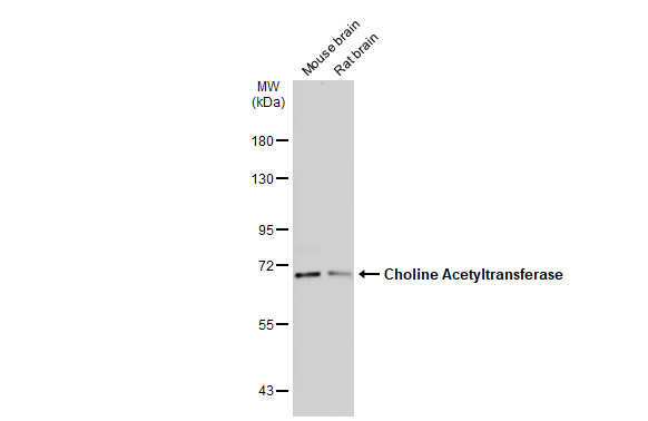 Various tissue extracts (50 μg) were separated by 7.5% SDS-PAGE, and the membrane was blotted with Choline Acetyltransferase antibody [N1N3] (GRP586) diluted at 1:500. The HRP-conjugated anti-rabbit IgG antibody  was used to detect the primary antibody